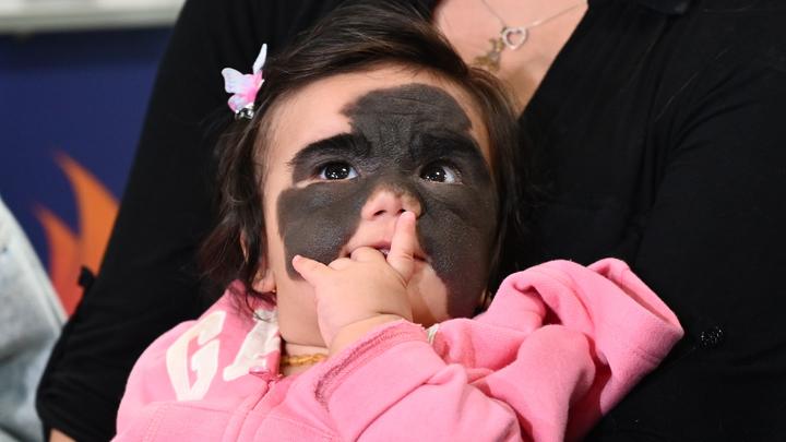 «Зачем рожали? Утопите!»: Отморозки из соцсетей атаковали семью девочки с большим родимым пятном