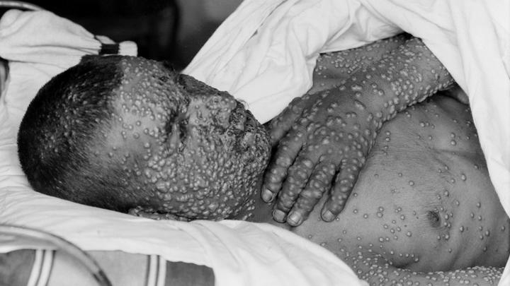 Cекретный карантин: Самые опасные эпидемии в России