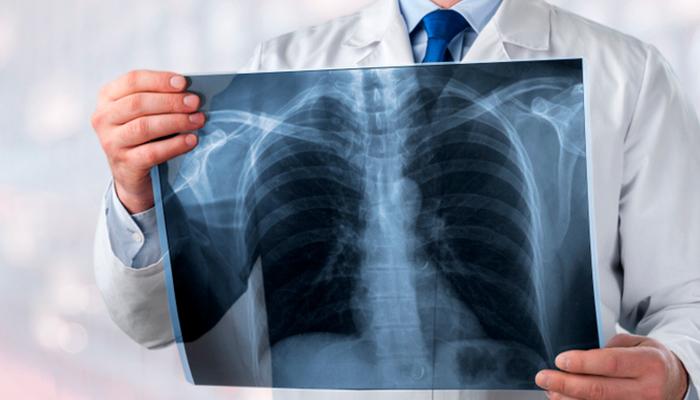 Больше всех заболеть раком боятся врачи-онкологи